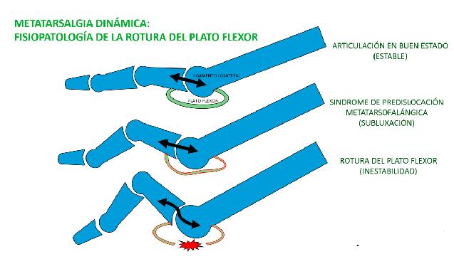Metatarsalgia dinámica, síndrome de predislocación y rotura del plato flexor
