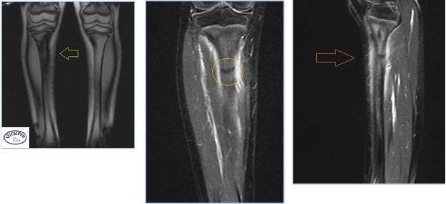 Resonancia Magnética T1 y supresión grasa en cortes Axiales y Sagital. Las flechas y el círculo muestran el trazo de fractura a nivel del tercio distal de la tibia de la pierna derecha.